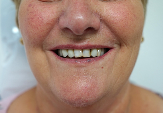 Image of Maidstone Denture Studio - after treatment