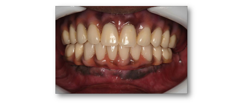 Image of Maidstone Denture Studio - Lower ALL – ON – 4