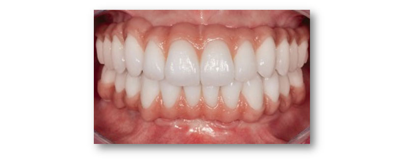 Image of Maidstone Denture Studio - Upper and Lower ALL – ON – 4